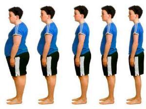 Obesity_Thick_Thin New